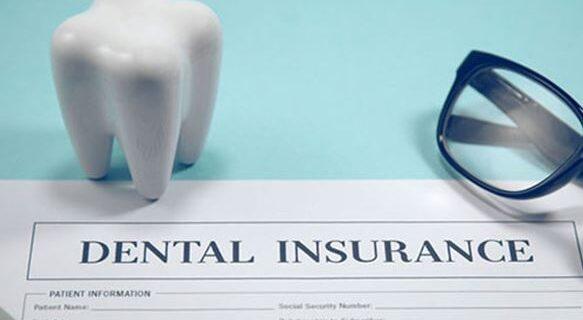 بیمه دندان پزشکی چیست؟ راهنمای خرید بهترین بیمه تکمیلی دندانپزشکی